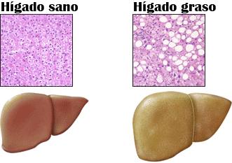 hígadograso
