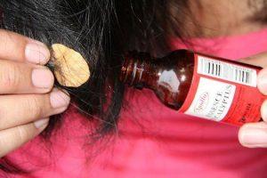 Tsiklosporin y las revocaciones a la psoriasis