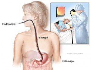 Tratamiento para aliviar los síntomas de la gastritis | La Guía de las vitaminas