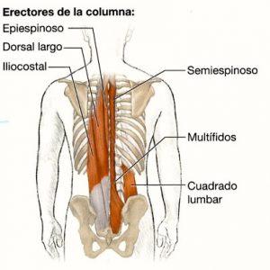 Los corsés de la curvatura de la columna vertebral