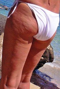 220px-Dimpled_appearance_of_cellulite