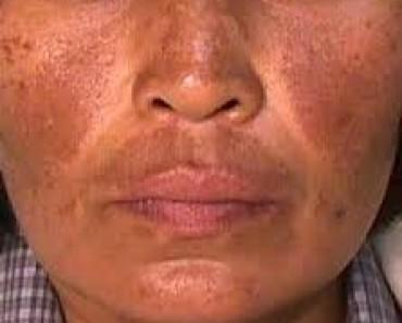 Aumento de la coloracion de la piel