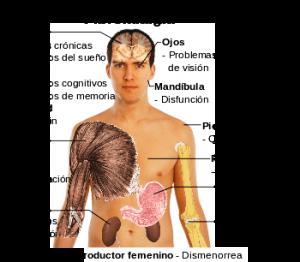 síntomas de fibromialgia