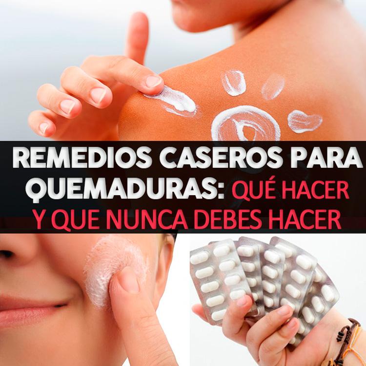 Remedios Caseros Para Quemaduras: Qué Hacer Y Que Nunca Debes Hacer ...