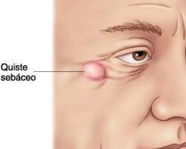 efectos acido urico elevado urea acido urico alto como aliviar el dolor de rodilla por acido urico