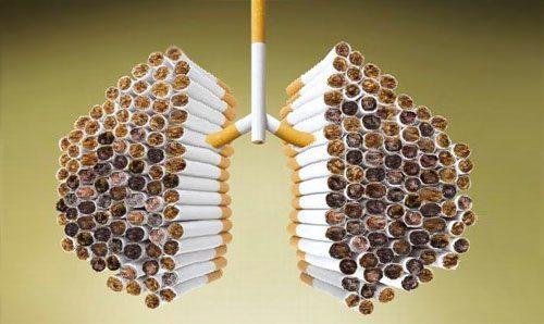 síntomas-de-cáncer-de-pulmón