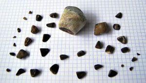 piedras-en-la-vesicula