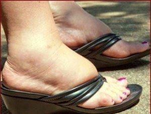 Recomendaciones para pies hinchados - La Guía de las Vitaminas