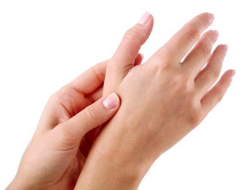 Si es posible curar la psoriasis gioksizon