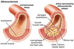 Arterosclerosis causas, síntomas y tratamiento