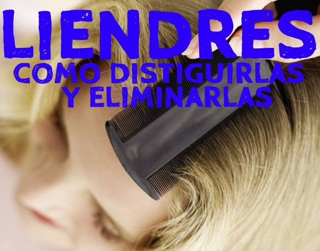 como-distinguir-y-eliminar-las-liendres-2