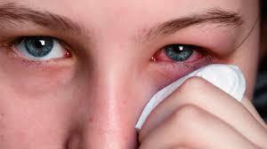 dolor de cabeza y ojos rojos
