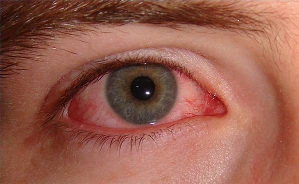 Causas de los ojos rojos