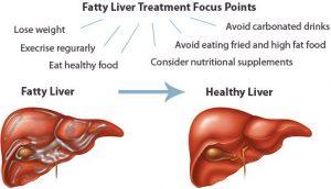Lista de alimentos que debes evitar si tienes hígado graso