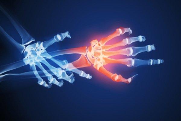 dolor-de-huesos-causas