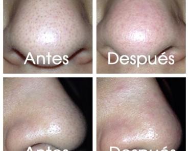 Como arreglar la piel problemática sobre la persona