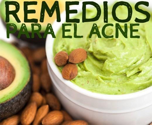 remedios-para-el-acne