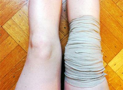 como-tratar-un-esgiunce-de-rodilla