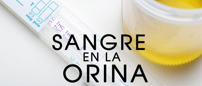Medicina natural para rebajar el vientre efectos del mangostn