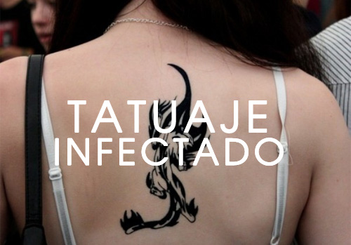 tatuaje-infectado-1