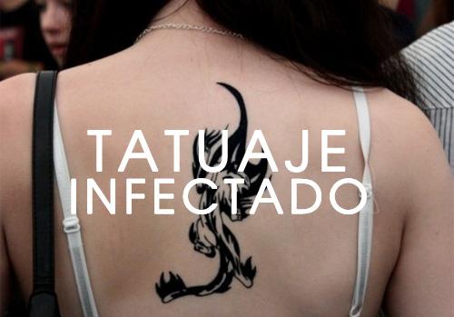 tatuaje-infectado-1