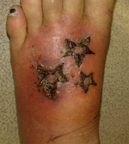 tatuaje-infectado-3