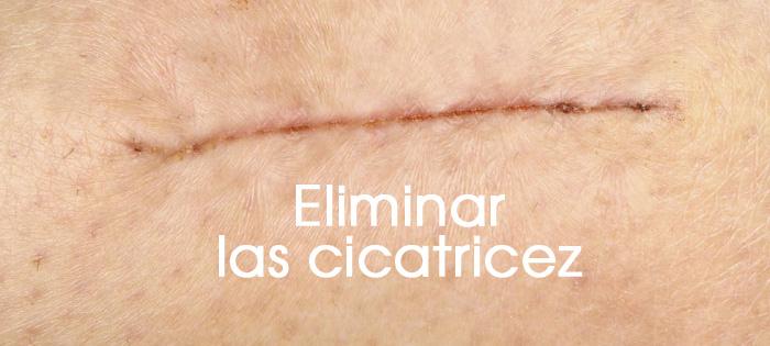 eliminar-las-cicatricez-1