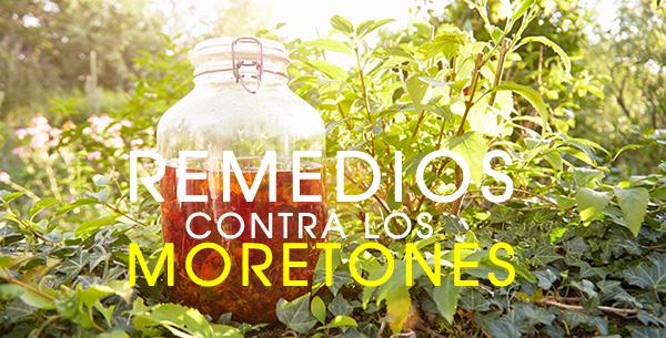 remedios-contra-los-moretones-1