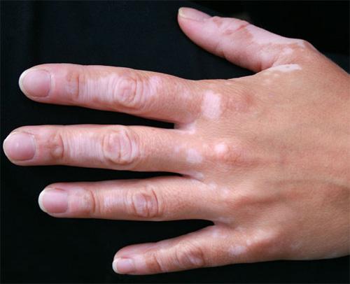 vitiligo-4