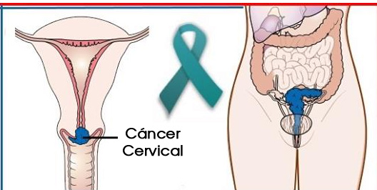 cancer-cervical-1