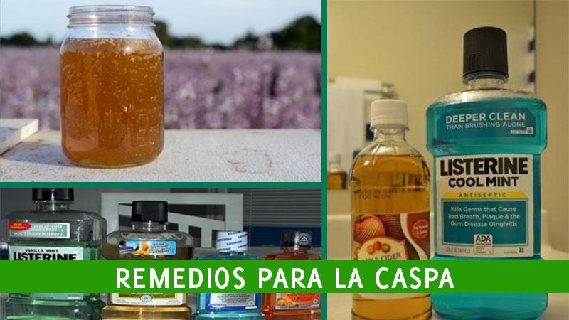 remedios-para-la-caspa-1