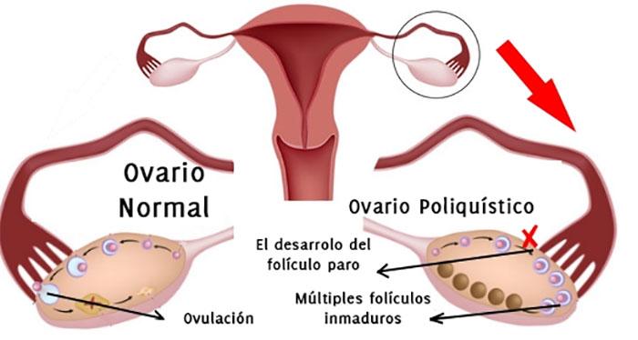 Resultado de imagen de sindrome de ovario poliquistico