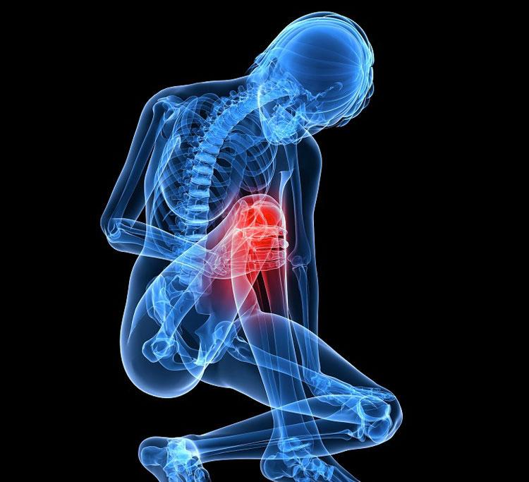 radiografia-mujer-artrosis
