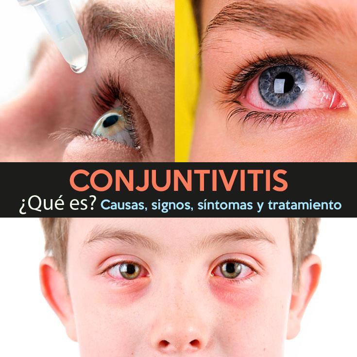 conjuntivitis-que-es-causas-signos-sintomas-y-tratamiento