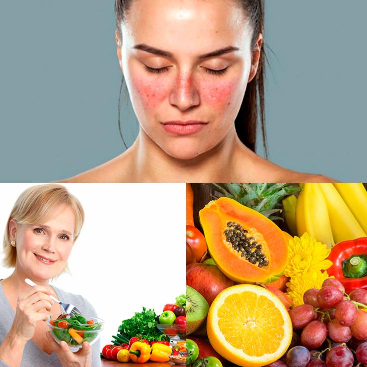 Resultado de imagen para Lupus y Dieta.