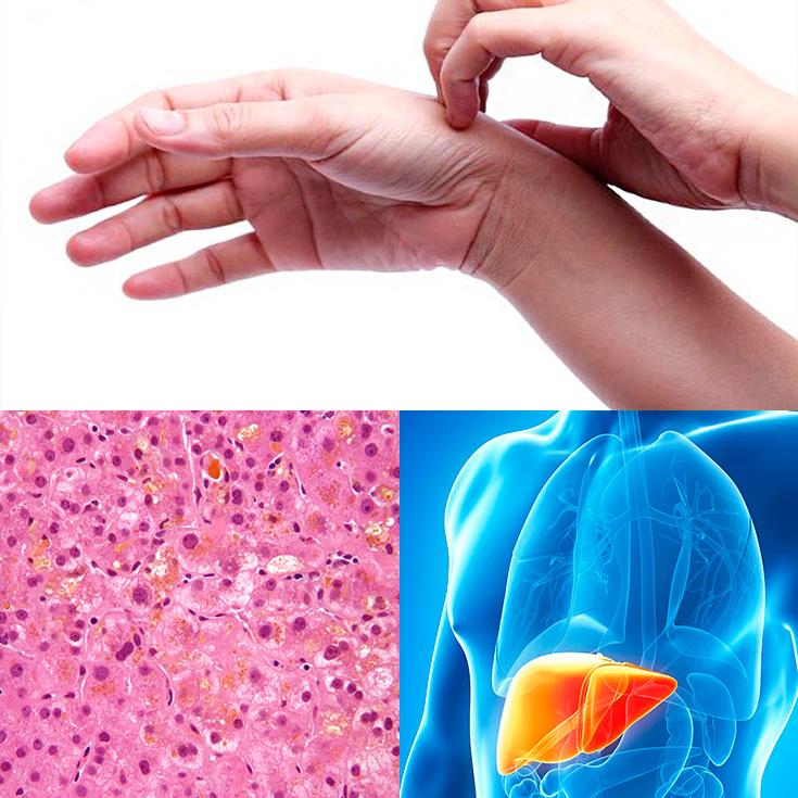 Dieta para colestasis intrahepatica