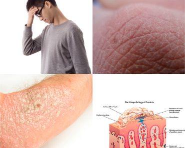 tratamiento para la gota gruesa dieta para la gota en el pie correccion acido urico de forma naturales