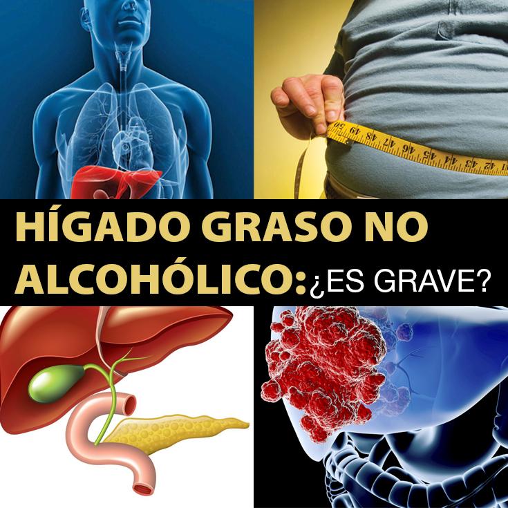 H gado graso no alcoh lico gu a definitiva la gu a de las vitaminas - Mejores alimentos para el higado ...