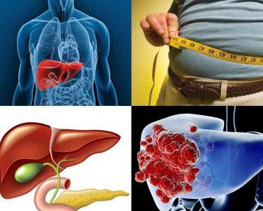 alimentos que aumentan la concentracion plasmatica de acido urico tomar cerveza provoca acido urico como eliminar naturalmente cristales de acido urico en las articulaciones