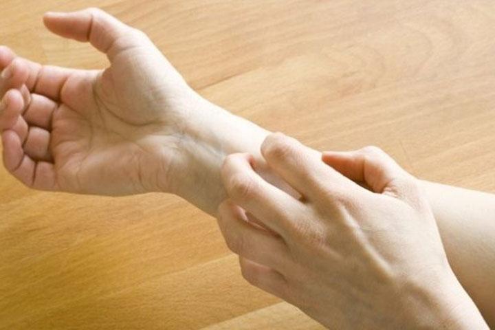 Eczema Numular