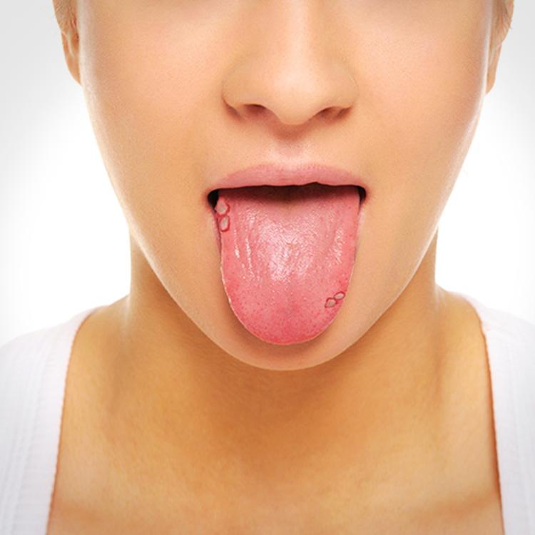Úlceras En La Lengua: 7 Causas Y Tratamiento - La Guía de las Vitaminas