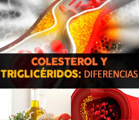 Diferencia entre el colesterol y triglicéridos