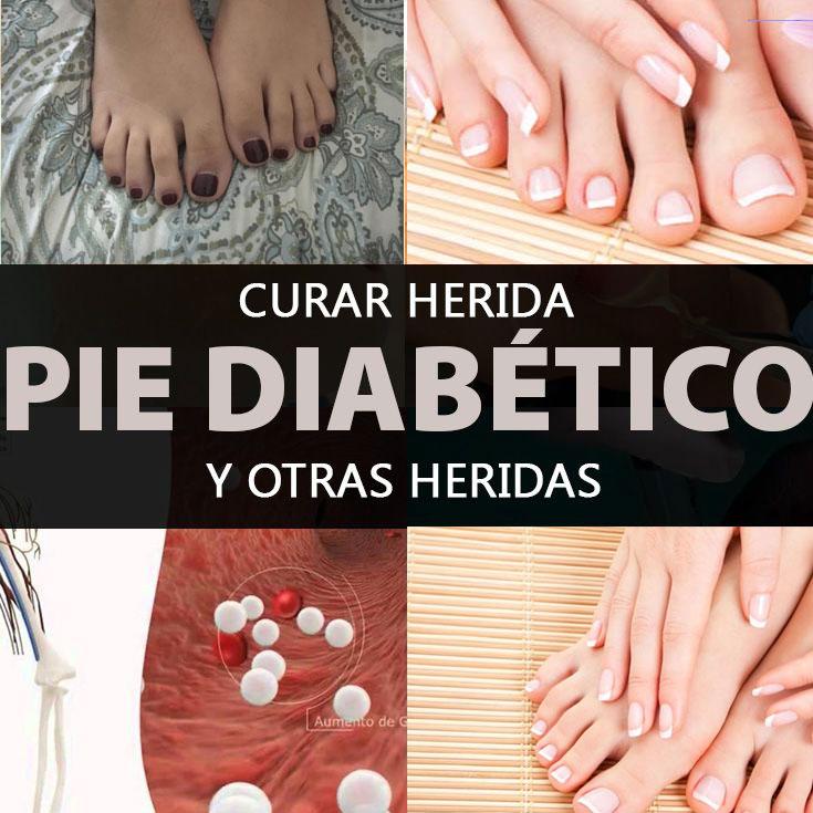 Curar Herida Pie Diabético Y Otras Heridas - La Guía de