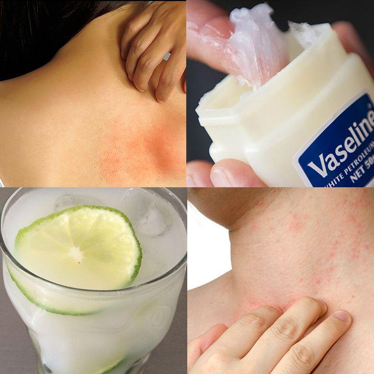 Top 10 Remedios Caseros Para Tratar Las Alergias En La Piel La Guía De Las Vitaminas