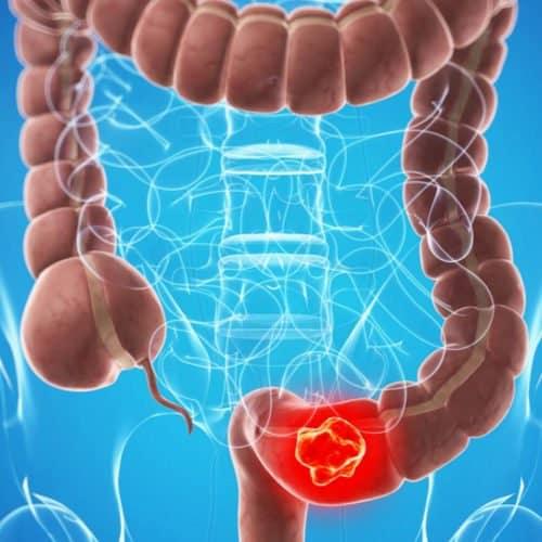 Que-es-la-colonoscopia - La Guía de las Vitaminas