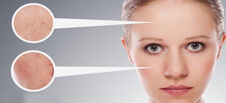 sarpullido en la cara posibles causas y tratamiento la guía de